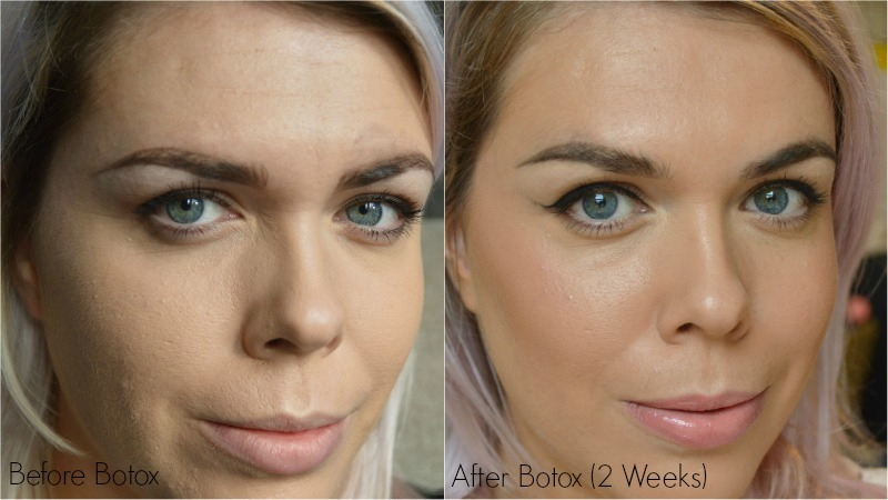 Botox | The Procedure & My Experience with Before & After Photos