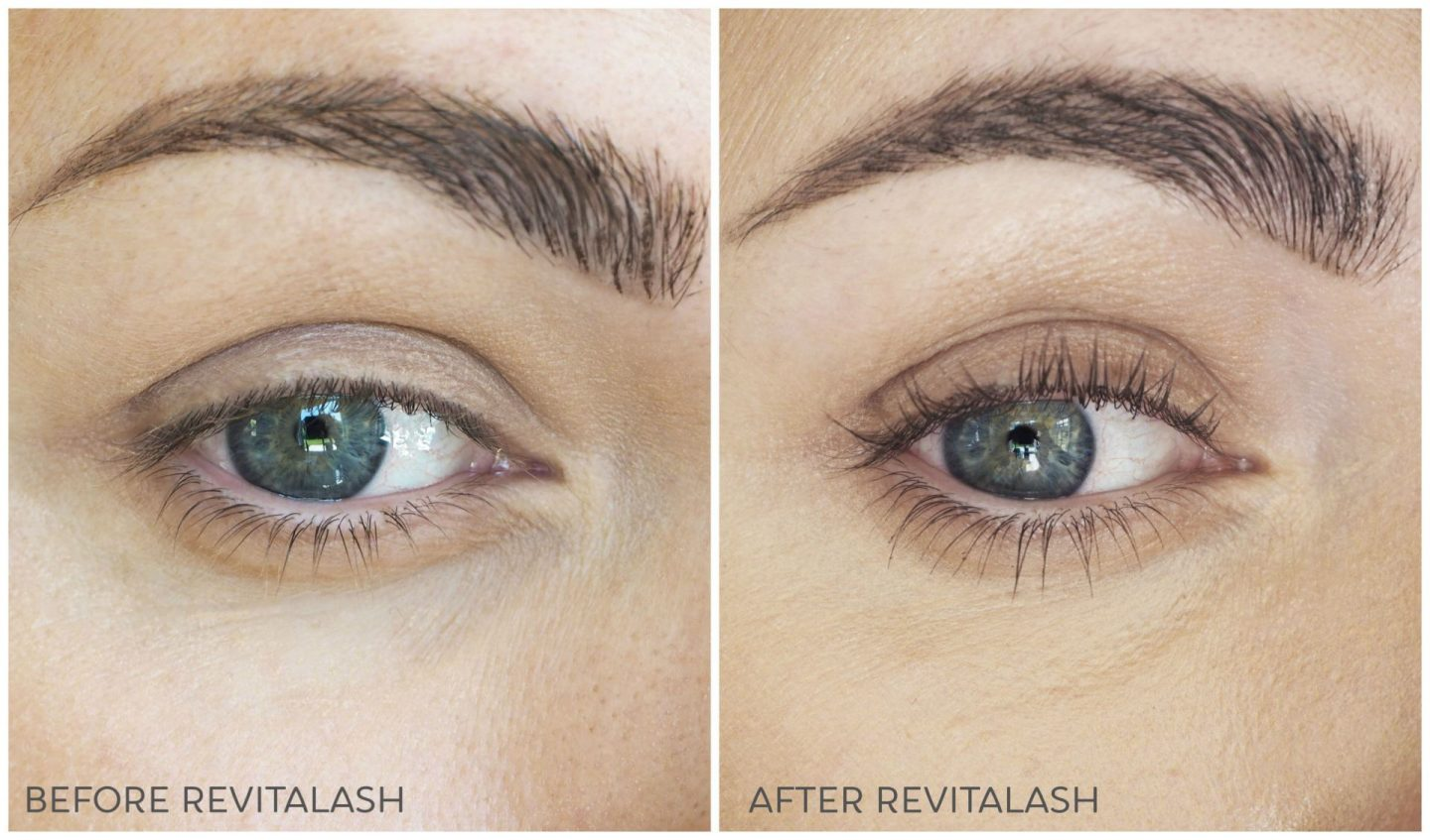 revitalash advanced before after